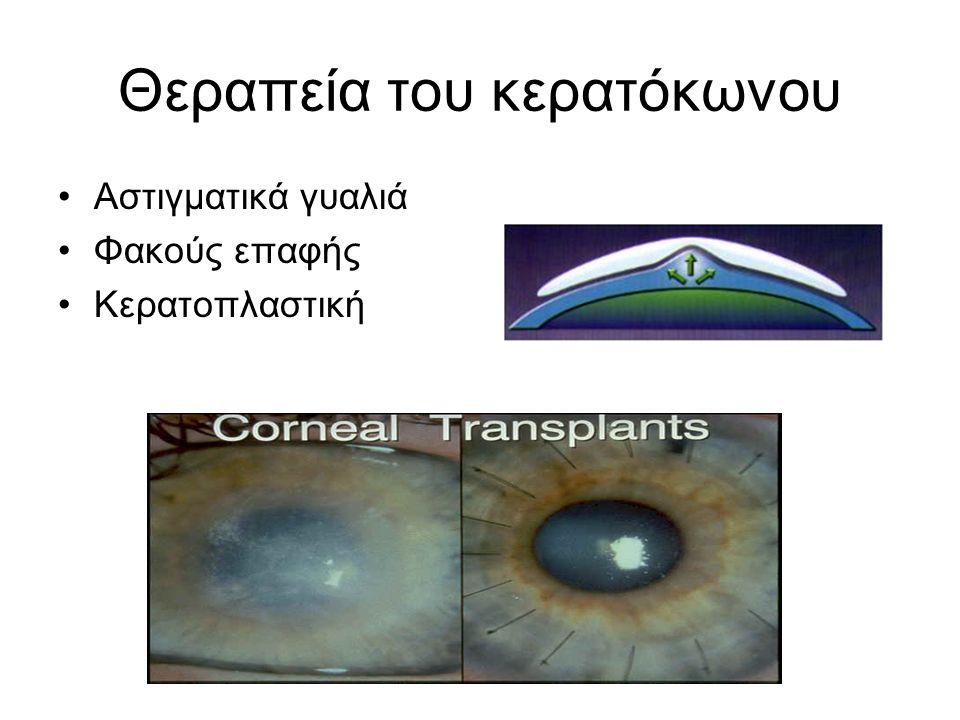 Θεραπεία του κερατόκωνου Αστιγματικά γυαλιά Φακούς επαφής Κερατοπλαστική