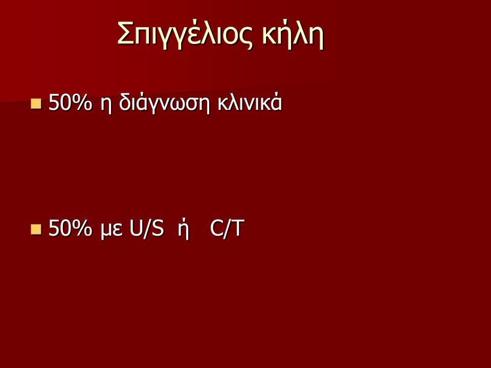 Σπιγγέλιος κήλη 50% η διάγνωση κλινικά 50% η διάγνωση κλινικά 50% με U/S ή C/T 50% με U/S ή C/T