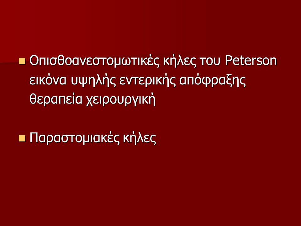 Οπισθοανεστομωτικές κήλες του Peterson Οπισθοανεστομωτικές κήλες του Peterson εικόνα υψηλής εντερικής απόφραξης θεραπεία χειρουργική Παραστομιακές κήλ