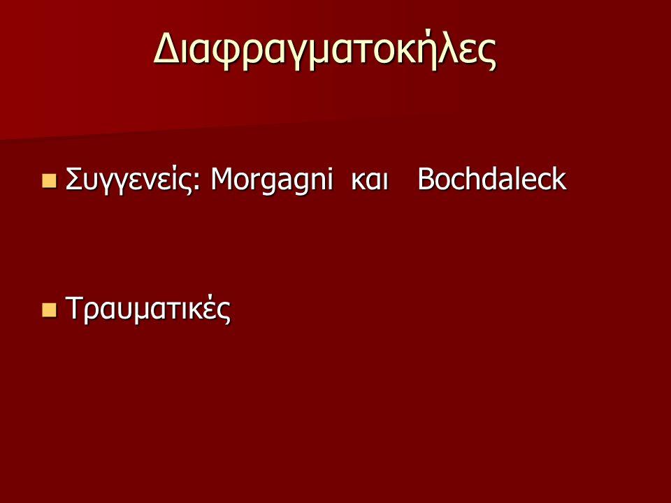 Διαφραγματοκήλες Συγγενείς: Morgagni και Bochdaleck Συγγενείς: Morgagni και Bochdaleck Τραυματικές Τραυματικές