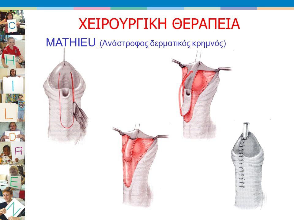 MATHIEU (Ανάστροφος δερματικός κρημνός) ΧΕΙΡΟΥΡΓΙΚΗ ΘΕΡΑΠΕΙΑ