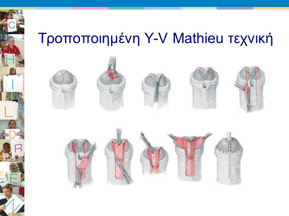 Τροποποιημένη Y-V Mathieu τεχνική