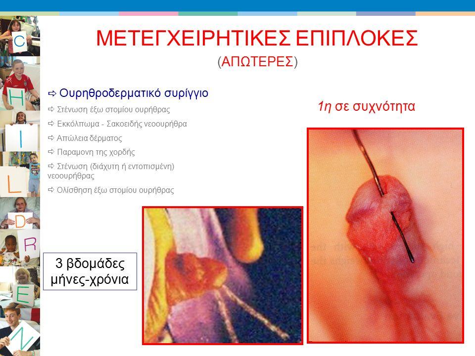 (ΑΠΩΤΕΡΕΣ) ΜΕΤΕΓΧΕΙΡΗΤΙΚΕΣ ΕΠΙΠΛΟΚΕΣ  Ουρηθροδερματικό συρίγγιο  Στένωση έξω στομίου ουρήθρας  Εκκόλπωμα - Σακοειδής νεοουρήθρα  Απώλεια δέρματος  Παραμονη της χορδής  Στένωση (διάχυτη ή εντοπισμένη) νεοουρήθρας  Ολίσθηση έξω στομίου ουρήθρας 3 βδομάδες μήνες-χρόνια 1η σε συχνότητα