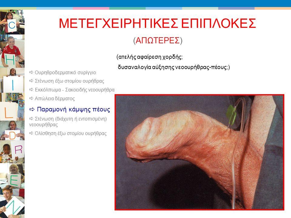 (ΑΠΩΤΕΡΕΣ) ΜΕΤΕΓΧΕΙΡΗΤΙΚΕΣ ΕΠΙΠΛΟΚΕΣ ( ατελής αφαίρεση χορδής; δυσαναλογία αύξησης νεοουρήθρας-πέους;)  Ουρηθροδερματικό συρίγγιο  Στένωση έξω στομίου ουρήθρας  Εκκόλπωμα - Σακοειδής νεοουρήθρα  Απώλεια δέρματος  Παραμονή κάμψης πέους  Στένωση (διάχυτη ή εντοπισμένη) νεοουρήθρας  Ολίσθηση έξω στομίου ουρήθρας