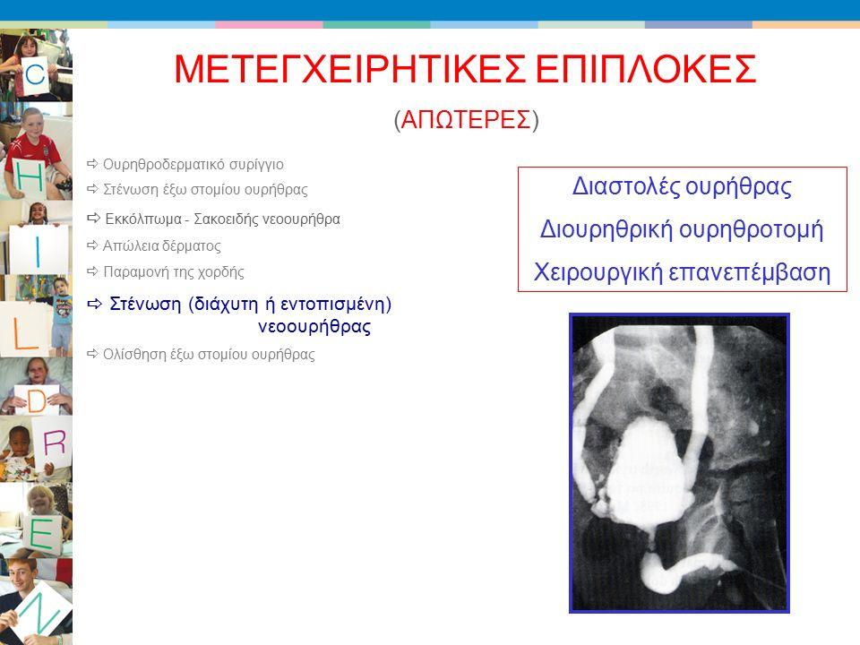 (ΑΠΩΤΕΡΕΣ) ΜΕΤΕΓΧΕΙΡΗΤΙΚΕΣ ΕΠΙΠΛΟΚΕΣ Διαστολές ουρήθρας Διουρηθρική ουρηθροτομή Χειρουργική επανεπέμβαση  Ουρηθροδερματικό συρίγγιο  Στένωση έξω στομίου ουρήθρας  Εκκόλπωμα - Σακοειδής νεοουρήθρα  Απώλεια δέρματος  Παραμονή της χορδής  Στένωση (διάχυτη ή εντοπισμένη) νεοουρήθρας  Ολίσθηση έξω στομίου ουρήθρας