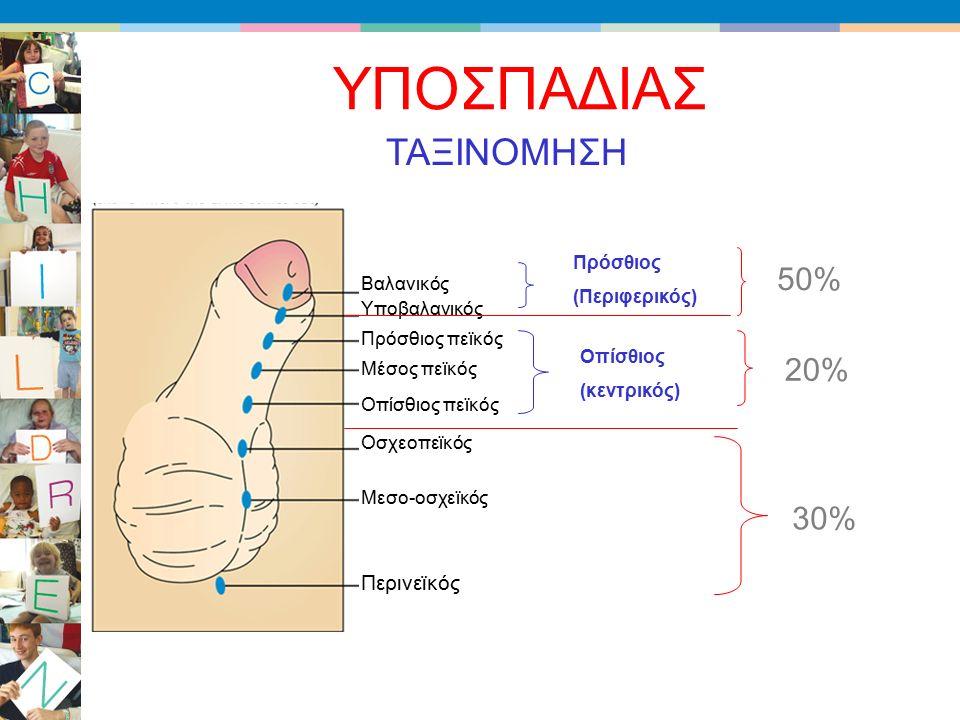 ΥΠΟΣΠΑΔΙΑΣ Βαλανικός Υποβαλανικός Πρόσθιος πεϊκός Μέσος πεϊκός Οπίσθιος πεϊκός Οσχεοπεϊκός Μεσο-οσχεϊκός Περινεϊκός ΤΑΞΙΝΟΜΗΣΗ Πρόσθιος (Περιφερικός) Οπίσθιος (κεντρικός) 50% 20% 30%
