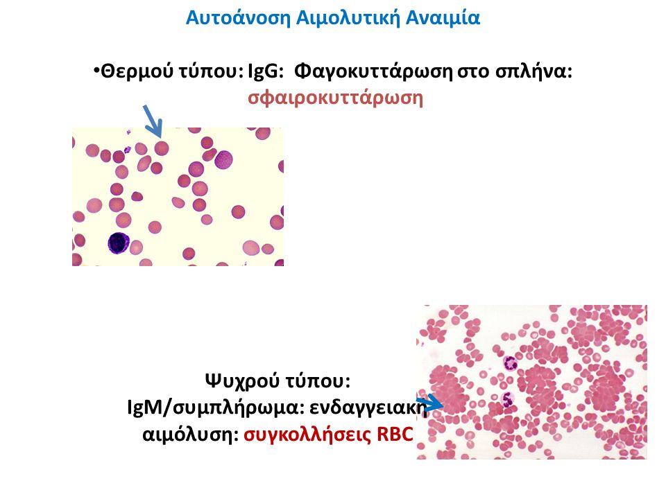 Αυτοάνοση Αιμολυτική Αναιμία Θερμού τύπου: IgG: Φαγοκυττάρωση στο σπλήνα: σφαιροκυττάρωση Ψυχρού τύπου: IgM/συμπλήρωμα: ενδαγγειακή αιμόλυση: συγκολλή