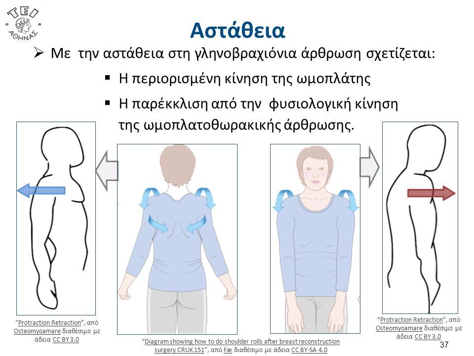 Αστάθεια 37  Με την αστάθεια στη γληνοβραχιόνια άρθρωση σχετίζεται:  Η περιορισμένη κίνηση της ωμοπλάτης  Η παρέκκλιση από την φυσιολογική κίνηση της ωμοπλατοθωρακικής άρθρωσης.