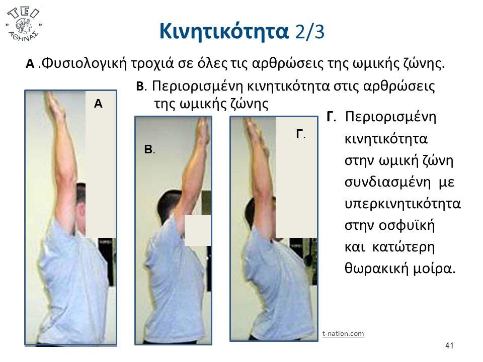 Κινητικότητα 2/3 Α. Φυσιολογική τροχιά σε όλες τις αρθρώσεις της ωμικής ζώνης. 41 Β. Περιορισμένη κινητικότητα στις αρθρώσεις της ωμικής ζώνης Γ. Περι
