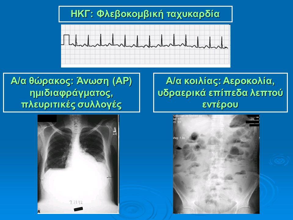 ΗΚΓ: Φλεβοκομβική ταχυκαρδία Α/α θώρακος: Άνωση (ΑΡ) ημιδιαφράγματος, πλευριτικές συλλογές Α/α κοιλίας: Αεροκολία, υδραερικά επίπεδα λεπτού εντέρου