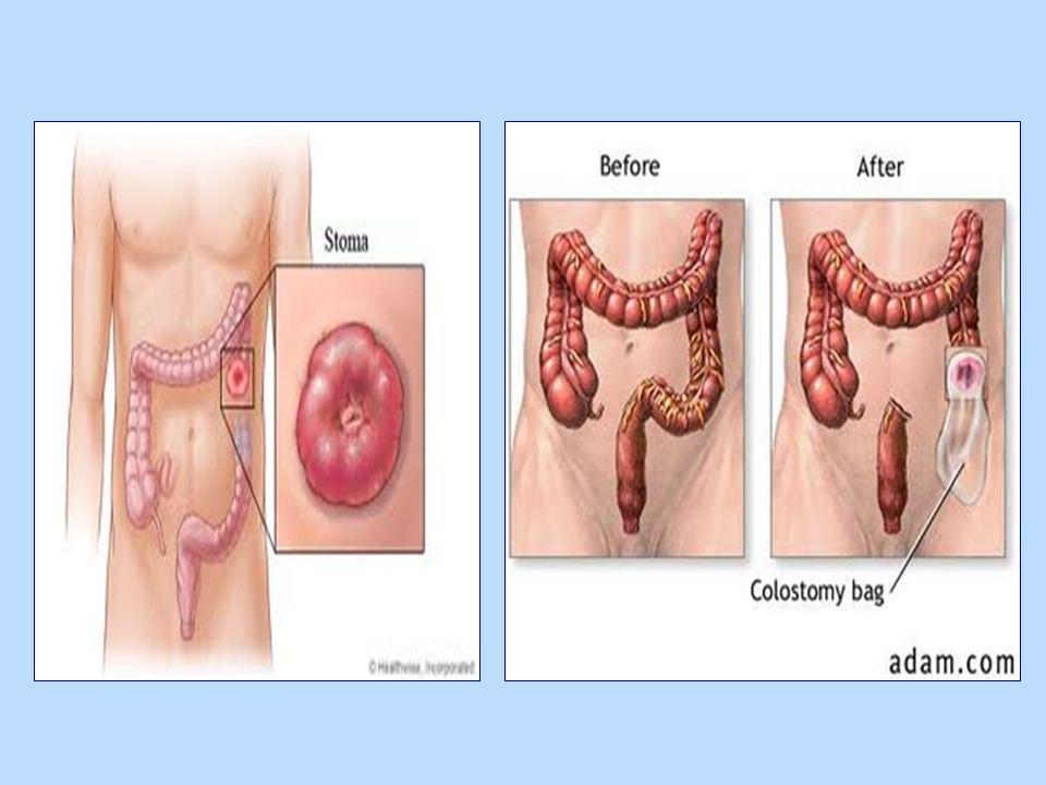 ΕΙΣΟΛΚΗ Άρρωστος με δύο στομίες.Διακρίνεται βαθμός εισολκής αριστερά (δεξιά στομία).