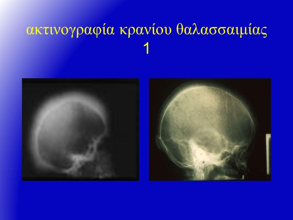 ακτινογραφία κρανίου θαλασσαιμίας 1