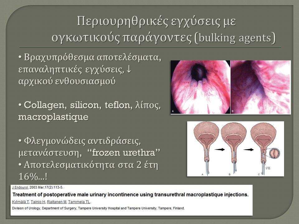 Βραχυπρόθεσμα αποτελέσματα, επαναληπτικές εγχύσεις, ↓ αρχικού ενθουσιασμού Βραχυπρόθεσμα αποτελέσματα, επαναληπτικές εγχύσεις, ↓ αρχικού ενθουσιασμού Collagen, silicon, teflon, λίπος, macroplastique Collagen, silicon, teflon, λίπος, macroplastique Φλεγμονώδεις αντιδράσεις, μετανάστευση, frozen urethra Φλεγμονώδεις αντιδράσεις, μετανάστευση, frozen urethra Αποτελεσματικότητα στα 2 έτη 16%....