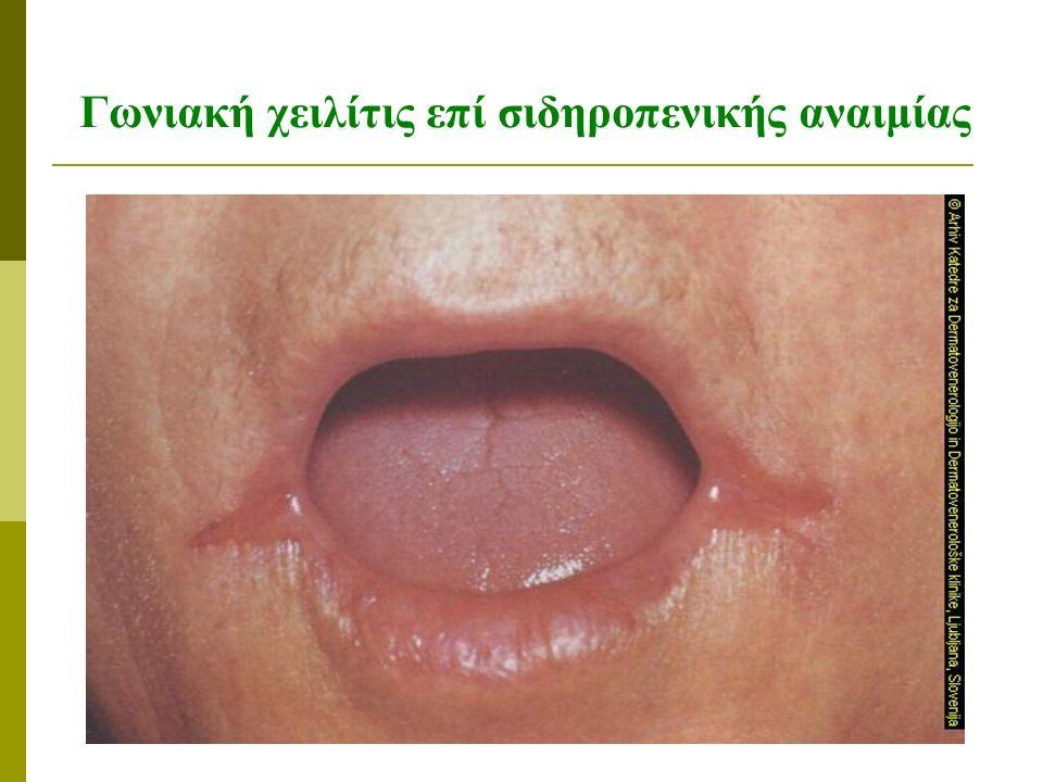 Γωνιακή χειλίτις επί σιδηροπενικής αναιμίας