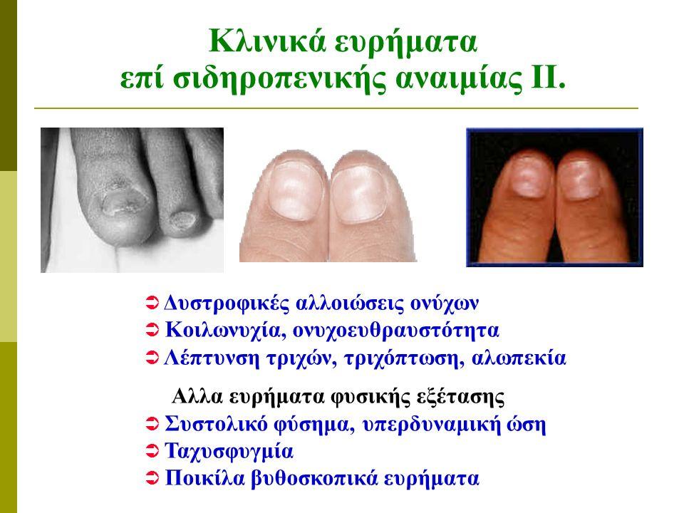 Κλινικά ευρήματα επί σιδηροπενικής αναιμίας ΙΙΙ.