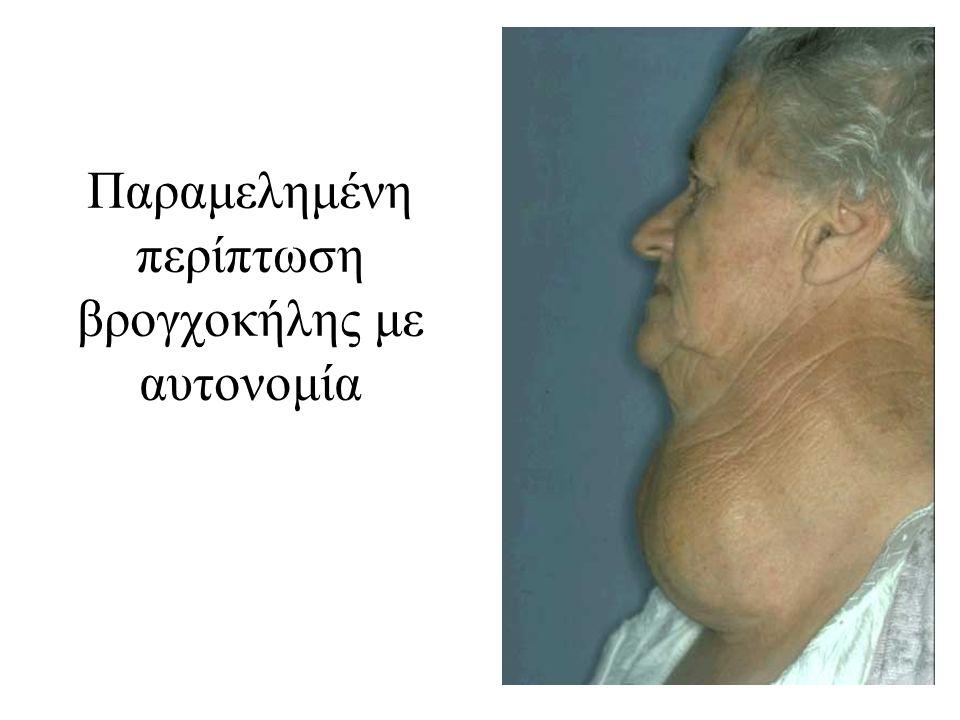 Παραμελημένη περίπτωση βρογχοκήλης με αυτονομία