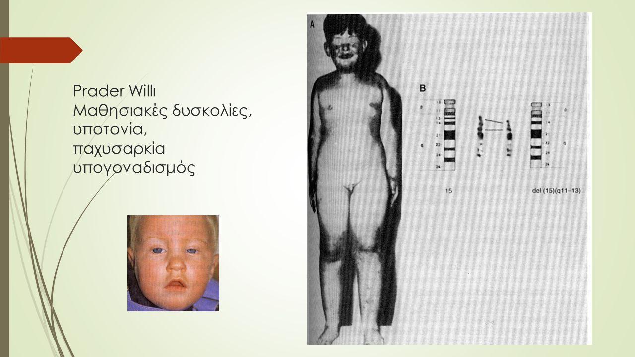 Prader Willι Μαθησιακές δυσκολίες, υποτονία, παχυσαρκία υπογοναδισμός
