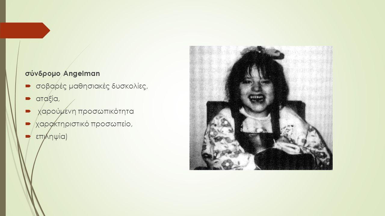 σύνδρομο Angelman  σοβαρές μαθησιακές δυσκολίες,  αταξία,  χαρούμενη προσωπικότητα  χαρακτηριστικό προσωπείο,  επιληψία)