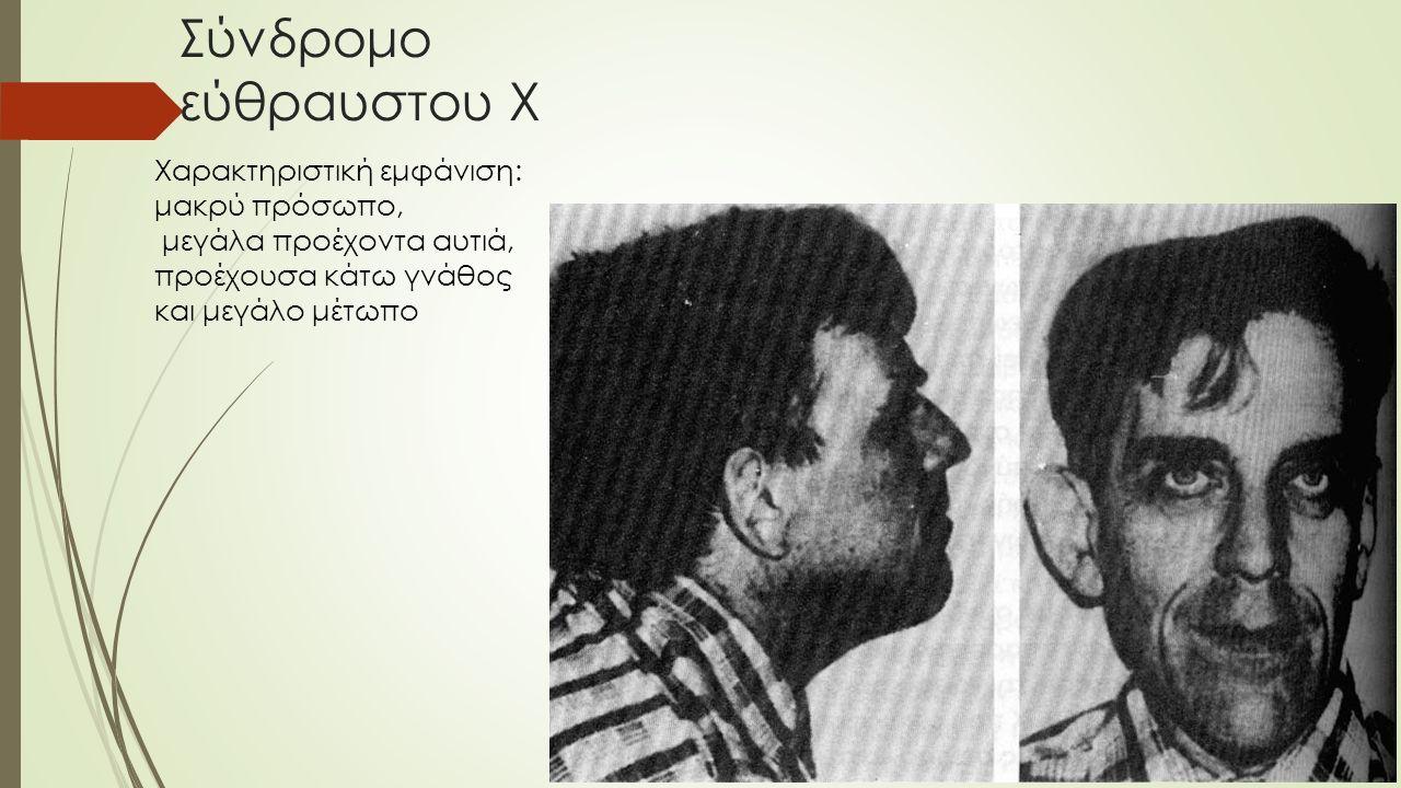 Σύνδρομο εύθραυστου Χ Χαρακτηριστική εμφάνιση: μακρύ πρόσωπο, μεγάλα προέχοντα αυτιά, προέχουσα κάτω γνάθος και μεγάλο μέτωπο