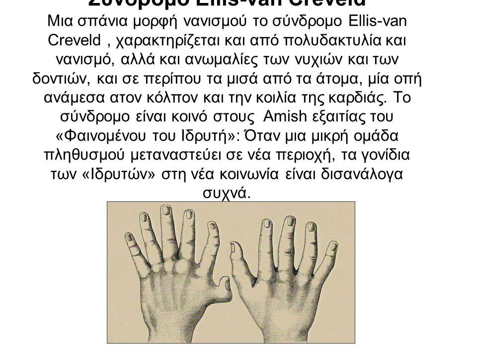 Σύνδρομο Ellis-van Creveld Μια σπάνια μορφή νανισμού το σύνδρομο Ellis-van Creveld, χαρακτηρίζεται και από πολυδακτυλία και νανισμό, αλλά και ανωμαλίες των νυχιών και των δοντιών, και σε περίπου τα μισά από τα άτομα, μία οπή ανάμεσα ατον κόλπον και την κοιλία της καρδιάς.