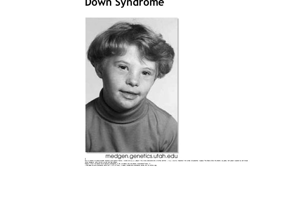 Down Syndrome (Trisomy 21) Down Syndrome is a genetic disorder caused by extra genetic material.