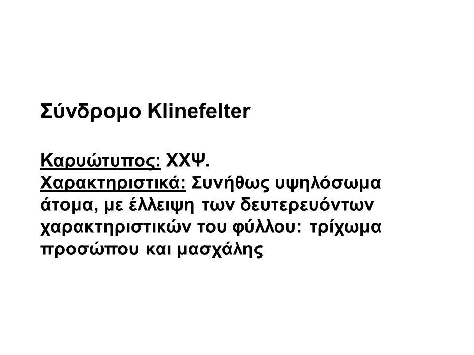 Σύνδρομο Klinefelter Καρυώτυπος: ΧΧΨ. Χαρακτηριστικά: Συνήθως υψηλόσωμα άτομα, με έλλειψη των δευτερευόντων χαρακτηριστικών του φύλλου: τρίχωμα προσώπ