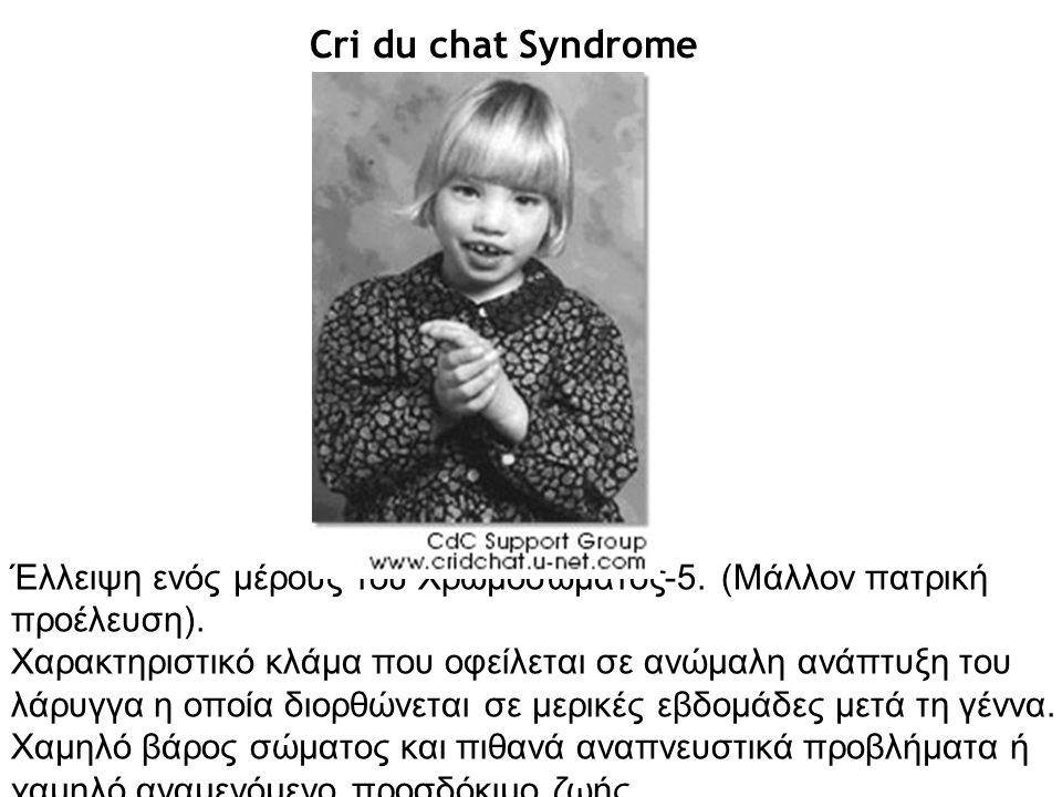Cri du chat Syndrome Έλλειψη ενός μέρους του Χρωμοσώματος-5. (Μάλλον πατρική προέλευση). Χαρακτηριστικό κλάμα που οφείλεται σε ανώμαλη ανάπτυξη του λά