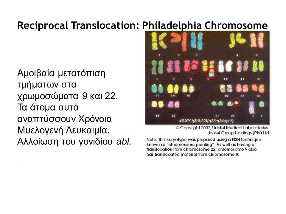 Reciprocal Translocation: Philadelphia Chromosome Αμοιβαία μετατόπιση τμήματων στα χρωμοσώματα 9 και 22. Τα άτομα αυτά αναπτύσσουν Χρόνοια Μυελογενή Λ