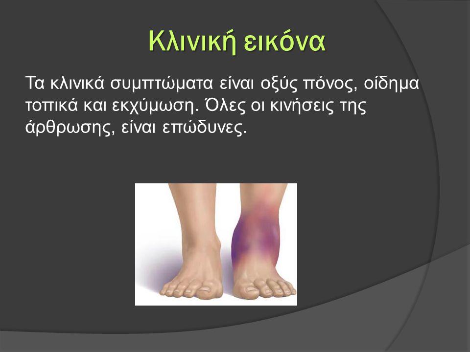 Κλινική εικόνα Τα κλινικά συμπτώματα είναι οξύς πόνος, οίδημα τοπικά και εκχύμωση. Όλες οι κινήσεις της άρθρωσης, είναι επώδυνες.