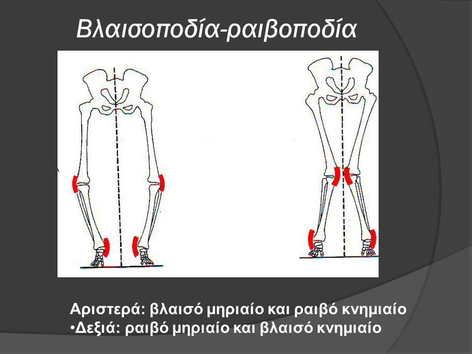 Βλαισοποδία-ραιβοποδία Αριστερά: βλαισό μηριαίο και ραιβό κνημιαίο Δεξιά: ραιβό μηριαίο και βλαισό κνημιαίο