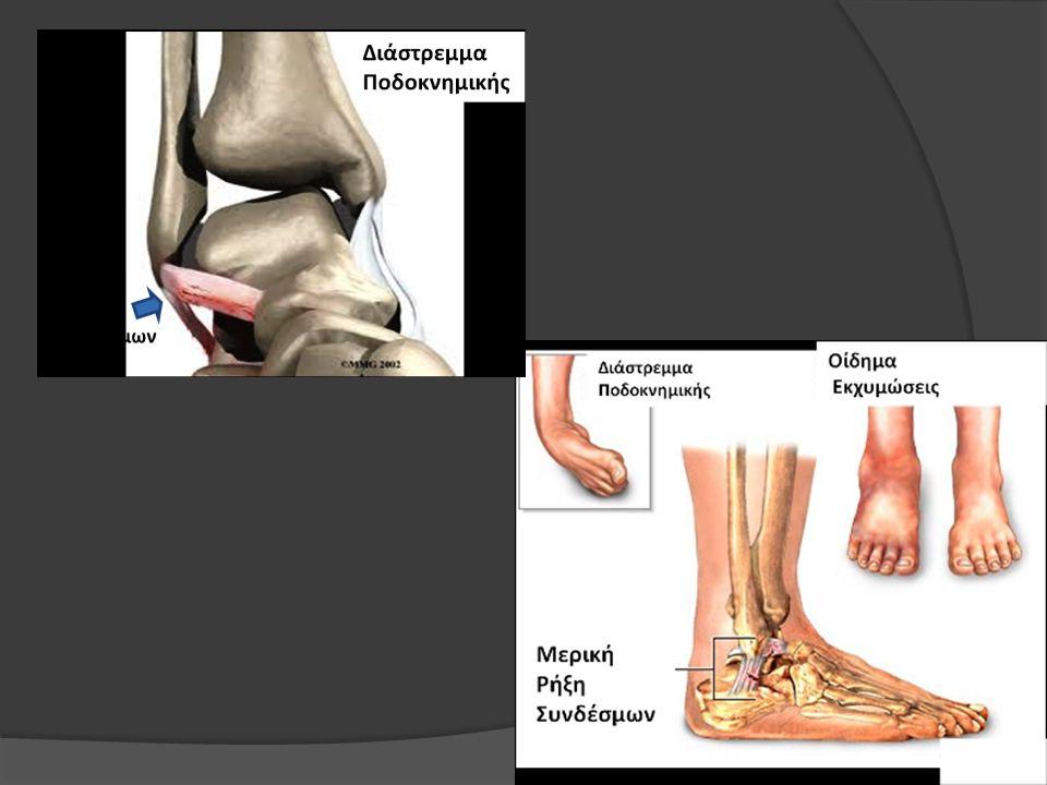 Η κλινική εικόνα των διαστρεμμάτων της ποδοκνημικής, ποικίλει σε βαρύτητα ανάλογα με το στάδιο της βλάβης, αλλά και από το πόσο χρονικό διάστημα πέρασε από τον τραυματισμό.