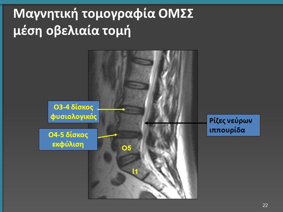 Ι1 Ο5 Ο4-5 δίσκος εκφύλιση Ο3-4 δίσκος φυσιολογικός Ρίζες νεύρων ιππουρίδα Μαγνητική τομογραφία ΟΜΣΣ μέση οβελιαία τομή 22