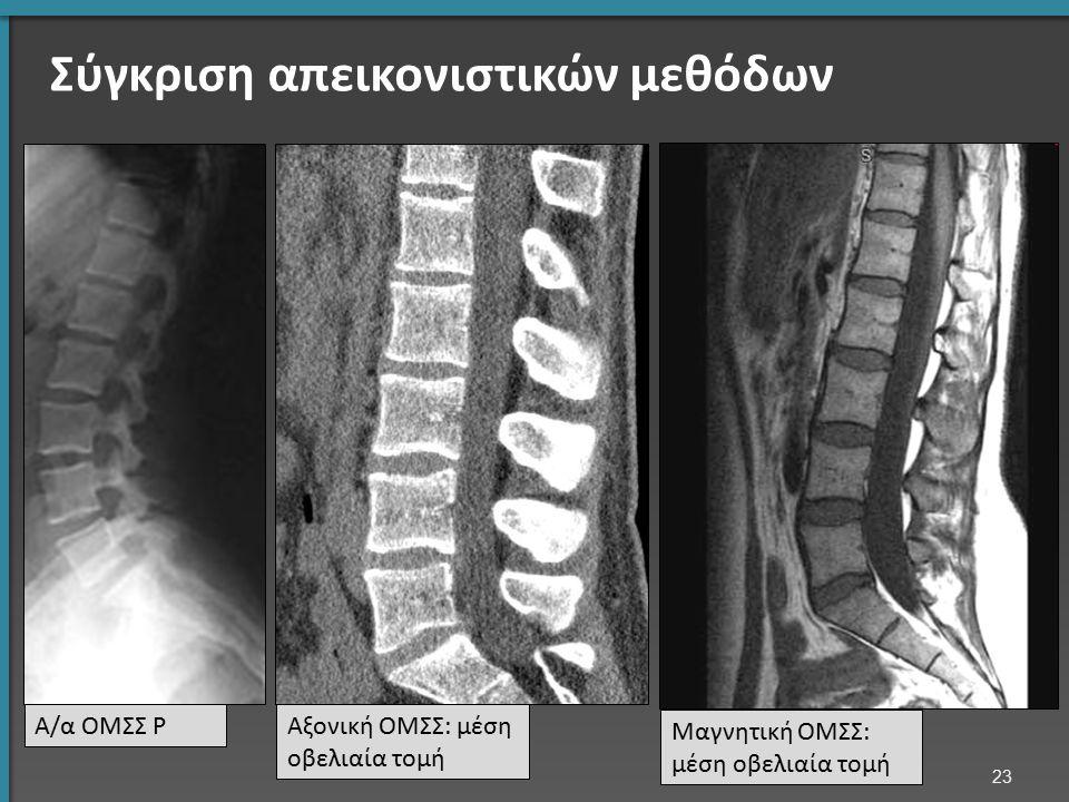Σύγκριση απεικονιστικών μεθόδων Α/α ΟΜΣΣ ΡΑξονική ΟΜΣΣ: μέση οβελιαία τομή Μαγνητική ΟΜΣΣ: μέση οβελιαία τομή 23