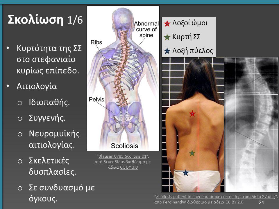 Σκολίωση 1/6 Κυρτότητα της ΣΣ στο στεφανιαίο κυρίως επίπεδο. Αιτιολογία o Ιδιοπαθής. o Συγγενής. o Νευρομυϊκής αιτιολογίας. o Σκελετικές δυσπλασίες. o