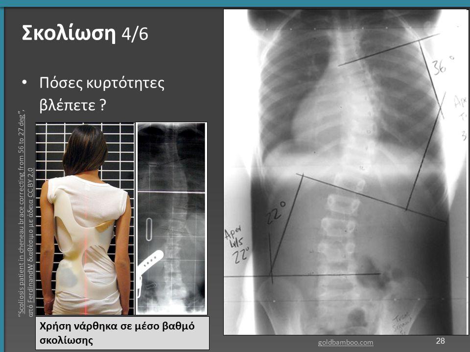 """Σκολίωση 4/6 Πόσες κυρτότητες βλέπετε ? goldbamboo.com Χρήση νάρθηκα σε μέσο βαθμό σκολίωσης 28 """"Scoliosis patient in cheneau brace correcting from 56"""