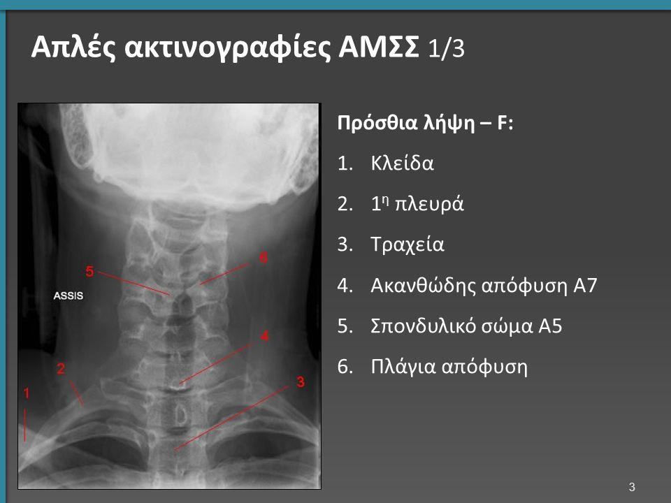 Όγκοι ΣΣ Πρωτοπαθείς Μεταστατικοί Οστά Νευρικός ιστός Μήνιγγες Α/α ΟΜΣΣ πλάγια: Μετάσταση Ο2 (λευκός σπόνδυλος) 54