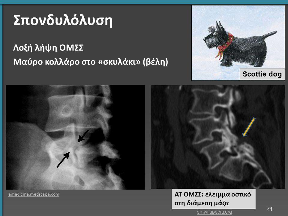 Σπονδυλόλυση Λοξή λήψη ΟΜΣΣ Μαύρο κολλάρο στο «σκυλάκι» (βέλη) ΑΤ ΟΜΣΣ: έλειμμα οστικό στη διάμεση μάζα emedicine.medscape.com Scottie dog 41 en.wikip