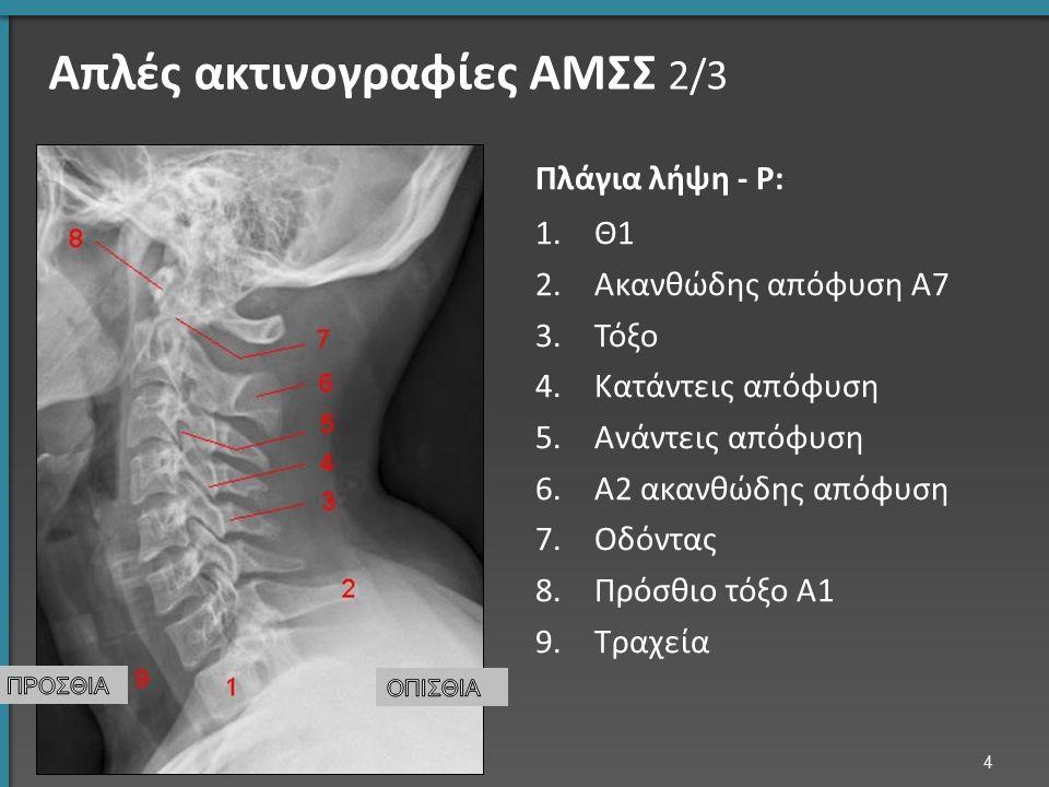 Μεταστατική νόσος o Συνήθως πολλαπλές στα οστά o Συνήθως οι ασθενείς έχουν προηγούμενες εξετάσεις για σύγκριση ΜΤ ΟΜΣΣ: καταστροφή του Ο4 σπονδύλου και πίεση του μηνιγγικού σάκκου από παθολογικό υλικό (γραμμή, * ) * * 55