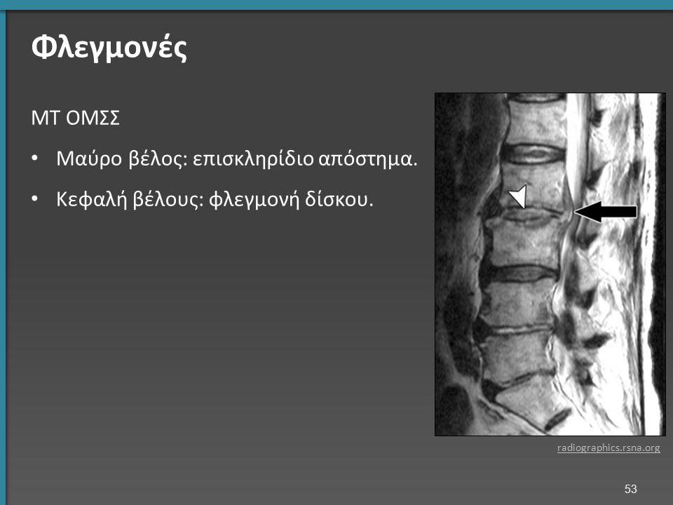 Φλεγμονές ΜΤ ΟΜΣΣ Μαύρο βέλος: επισκληρίδιο απόστημα. Κεφαλή βέλους: φλεγμονή δίσκου. radiographics.rsna.org 53