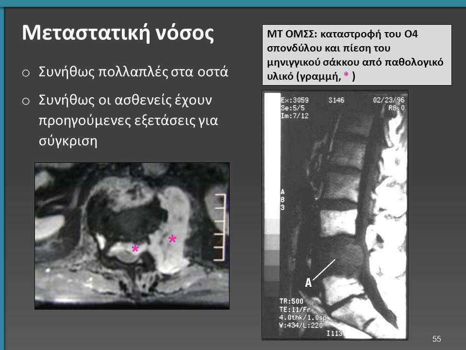 Μεταστατική νόσος o Συνήθως πολλαπλές στα οστά o Συνήθως οι ασθενείς έχουν προηγούμενες εξετάσεις για σύγκριση ΜΤ ΟΜΣΣ: καταστροφή του Ο4 σπονδύλου κα