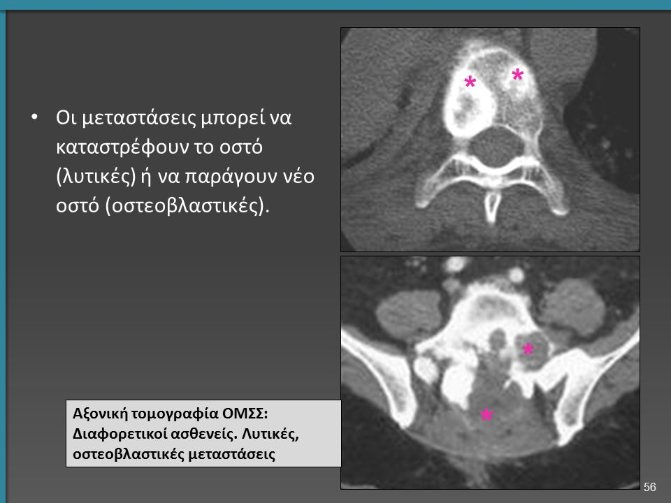 Οι μεταστάσεις μπορεί να καταστρέφουν το οστό (λυτικές) ή να παράγουν νέο οστό (οστεοβλαστικές). Αξονική τομογραφία ΟΜΣΣ: Διαφορετικοί ασθενείς. Λυτικ