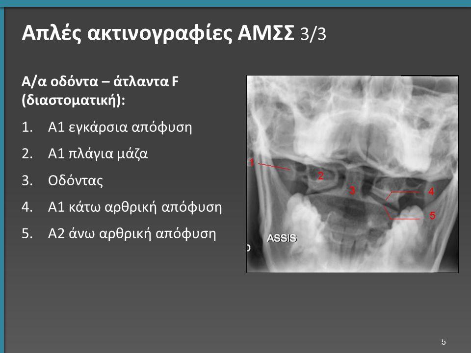 Απλές ακτινογραφίες ΑΜΣΣ 3/3 Α/α οδόντα – άτλαντα F (διαστοματική): 1.Α1 εγκάρσια απόφυση 2.Α1 πλάγια μάζα 3.Οδόντας 4.Α1 κάτω αρθρική απόφυση 5.Α2 άν