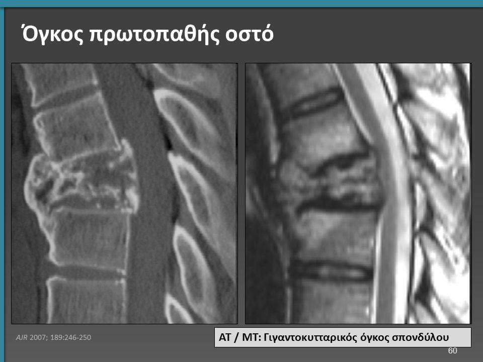 Όγκος πρωτοπαθής οστό ΑΤ / ΜΤ: Γιγαντοκυτταρικός όγκος σπονδύλου AJR 2007; 189:246-250 60