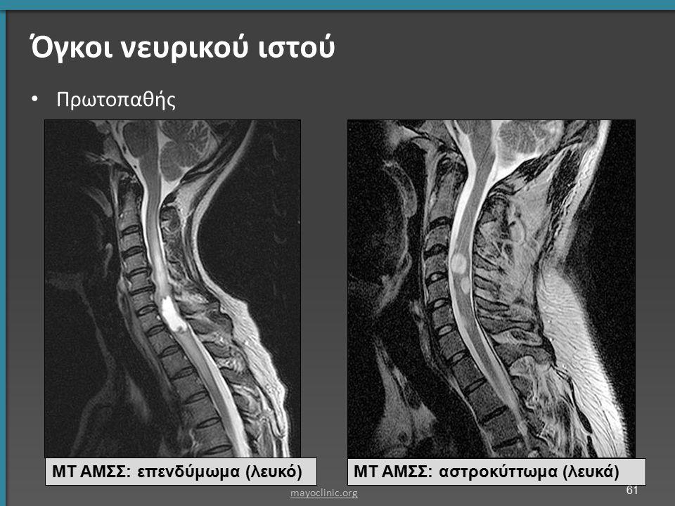 Όγκοι νευρικού ιστού Πρωτοπαθής ΜΤ ΑΜΣΣ: επενδύμωμα (λευκό) ΜΤ ΑΜΣΣ: αστροκύττωμα (λευκά) mayoclinic.org 61