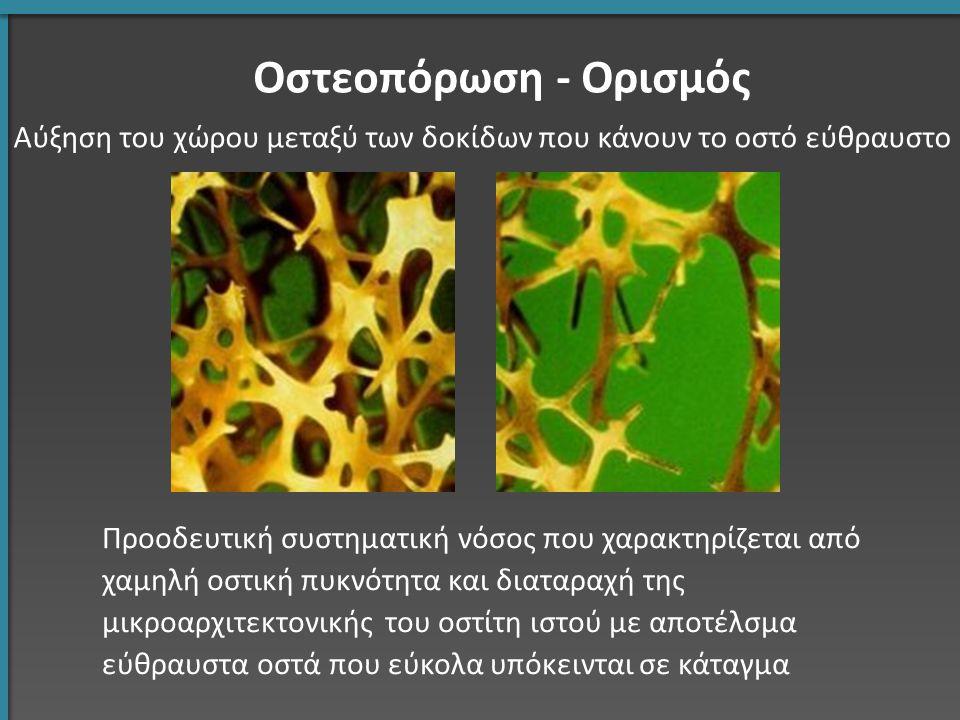 Αύξηση του χώρου μεταξύ των δοκίδων που κάνουν το οστό εύθραυστο Οστεοπόρωση - Ορισμός Προοδευτική συστηματική νόσος που χαρακτηρίζεται από χαμηλή οστ