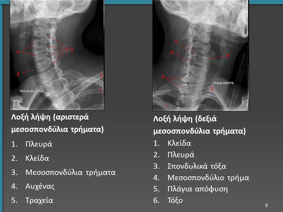 Στέλεχος Παρεγκεφαλίδα Νωτιαίος μυελός Εγκεφαλονωτιαίο υγρό, ΕΝΥ Α7 ακανθώδης απόφυση Α7 σπονδυλικό σώμα Τραχεία Α2, οδόντας Α3-4 μεσοσπονδύλιο διάστημα Μαγνητική τομογραφία ΑΜΣΣ: Μέση οβελιαία τομή 7