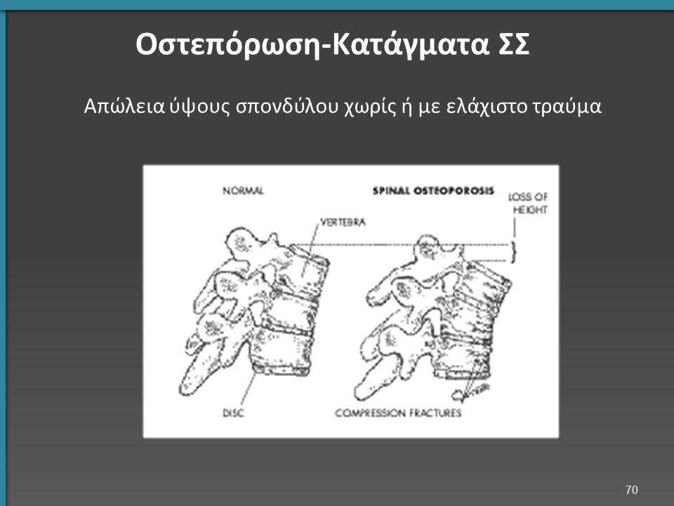 70 Οστεπόρωση-Κατάγματα ΣΣ Απώλεια ύψους σπονδύλου χωρίς ή με ελάχιστο τραύμα