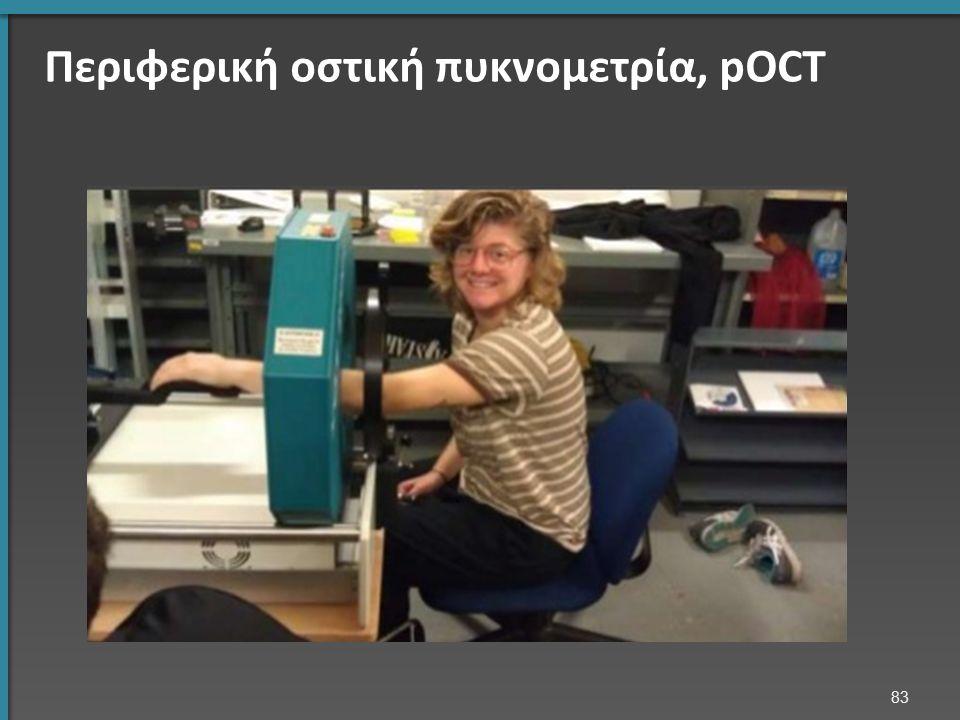 Περιφερική οστική πυκνομετρία, pOCT 83 Περιφερική πυκνομετρία με Αξονική Τομογραφία (pQCT)