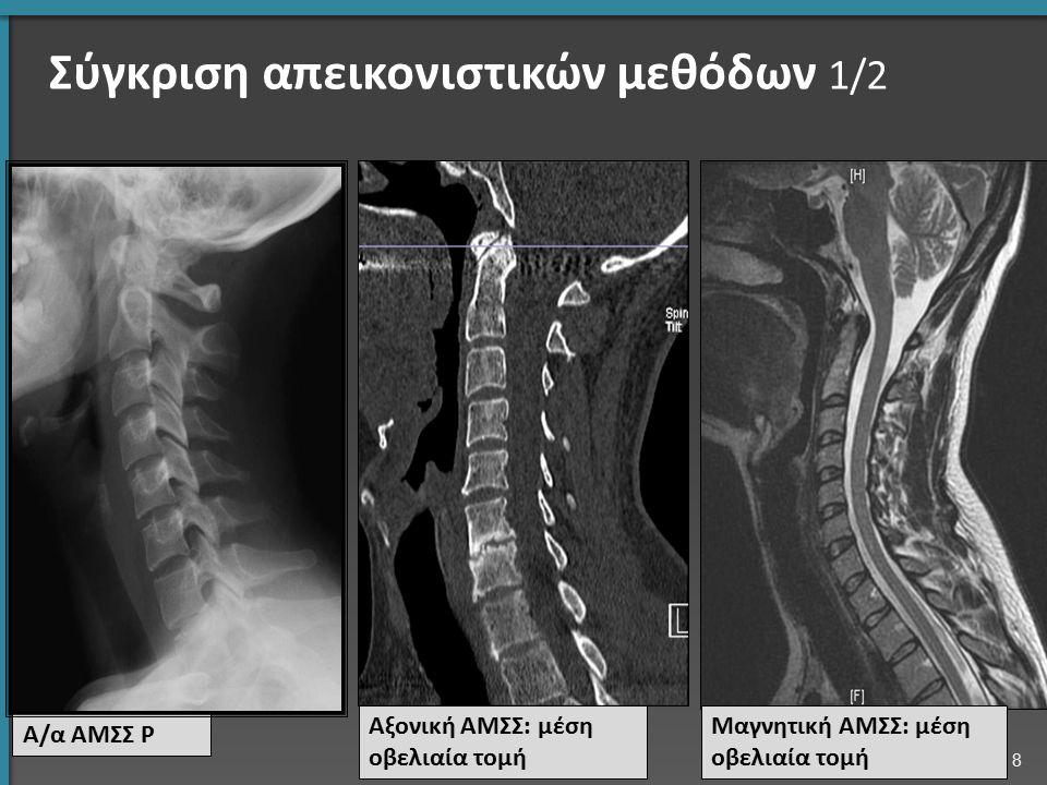 Σκολίωση 5/6 Όταν η σκολίωση είναι σοβαρή τότε γίνεται χειρουργική σταθεροποίηση. 29