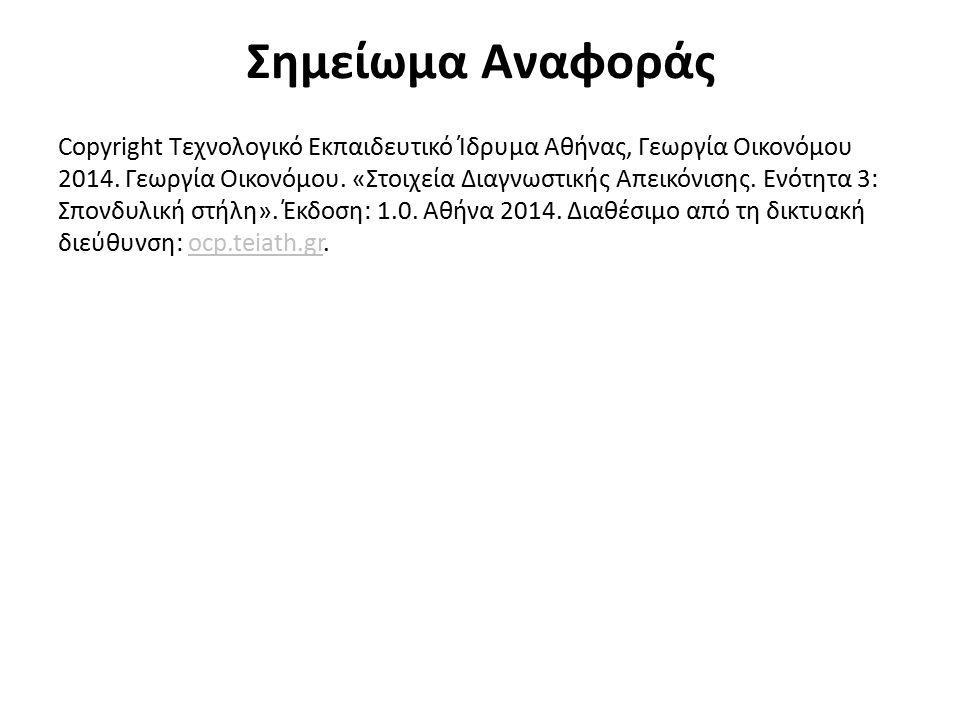 Σημείωμα Αναφοράς Copyright Τεχνολογικό Εκπαιδευτικό Ίδρυμα Αθήνας, Γεωργία Οικονόμου 2014. Γεωργία Οικονόμου. «Στοιχεία Διαγνωστικής Απεικόνισης. Ενό